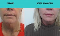 Great example of skin rejuvenation – 4D HIFU Sydney