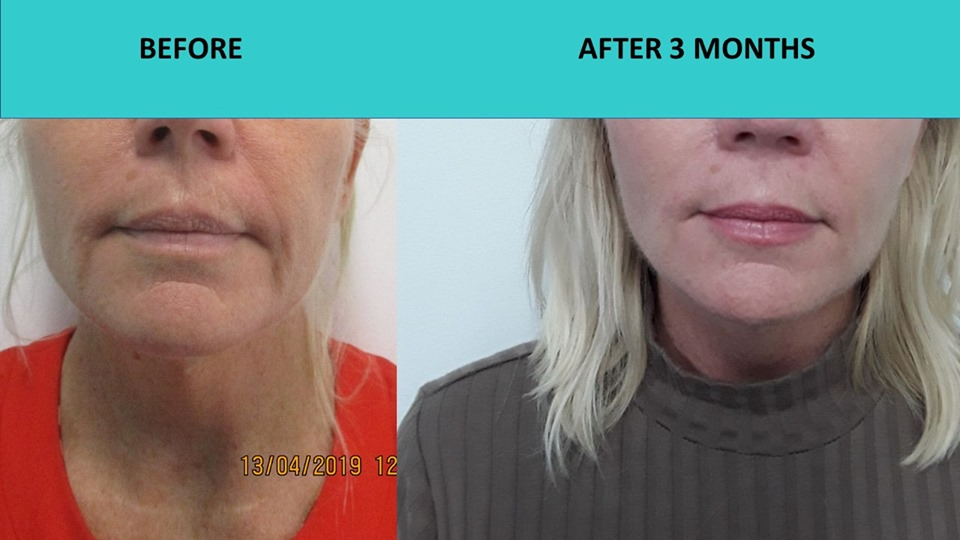 Non surgical face lift at SABA Medispa - HIFU face and neck lift - another great result showing very significant improvements to this customers face making her skin much tighter, fresher and younger looking!