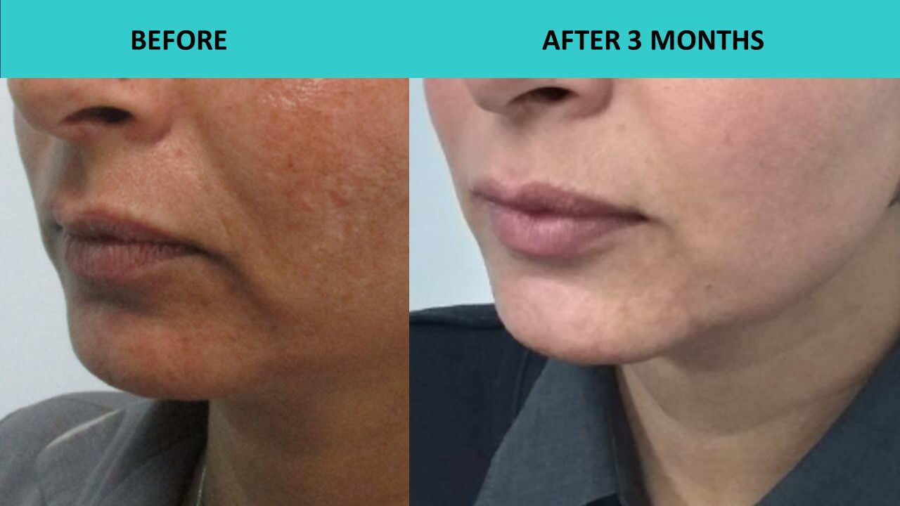 Non surgical face lift at SABA Medispa - HIFU face and neck lift together with HIFU Mini around the mouth have produced another great result.