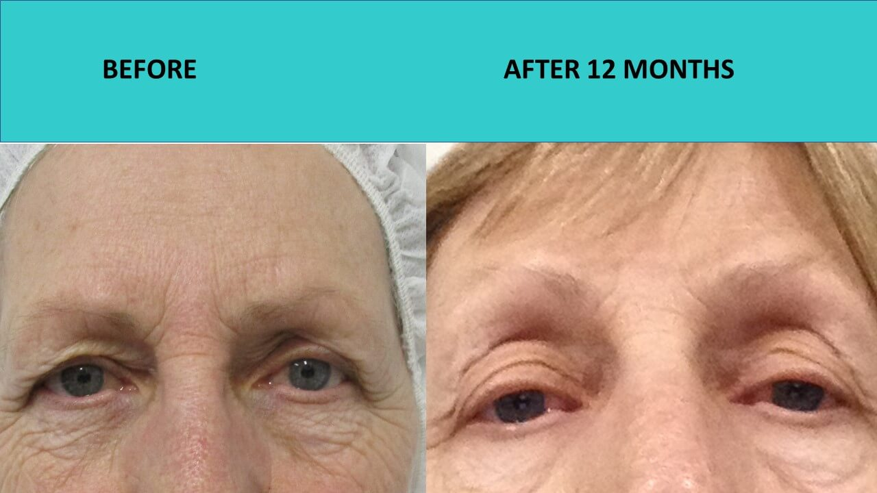 Non surgical face lift at SABA Medispa - HIFU face and neck lift, Mini HIFU around the eyes and plasma cosmetic eye lid lift (one treatment only) impressive results 12 months after the treatment!