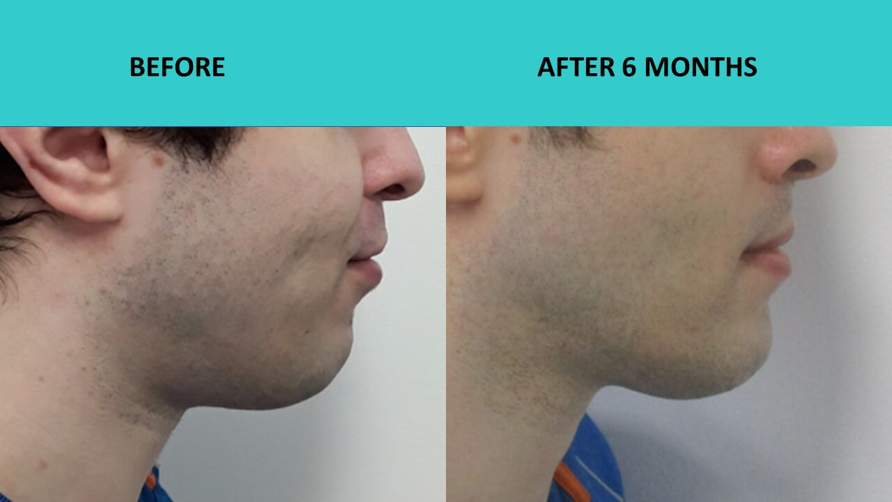 Here is proof that very young people can benefit from HIFU non surgical face lift as well. This young man is only 29 years old but he still got great results at SABA Medispa. This is an incredible skin texture transformation in action. Acne scars gone, heavily smoothed out. Chin looks firmer and more defined.