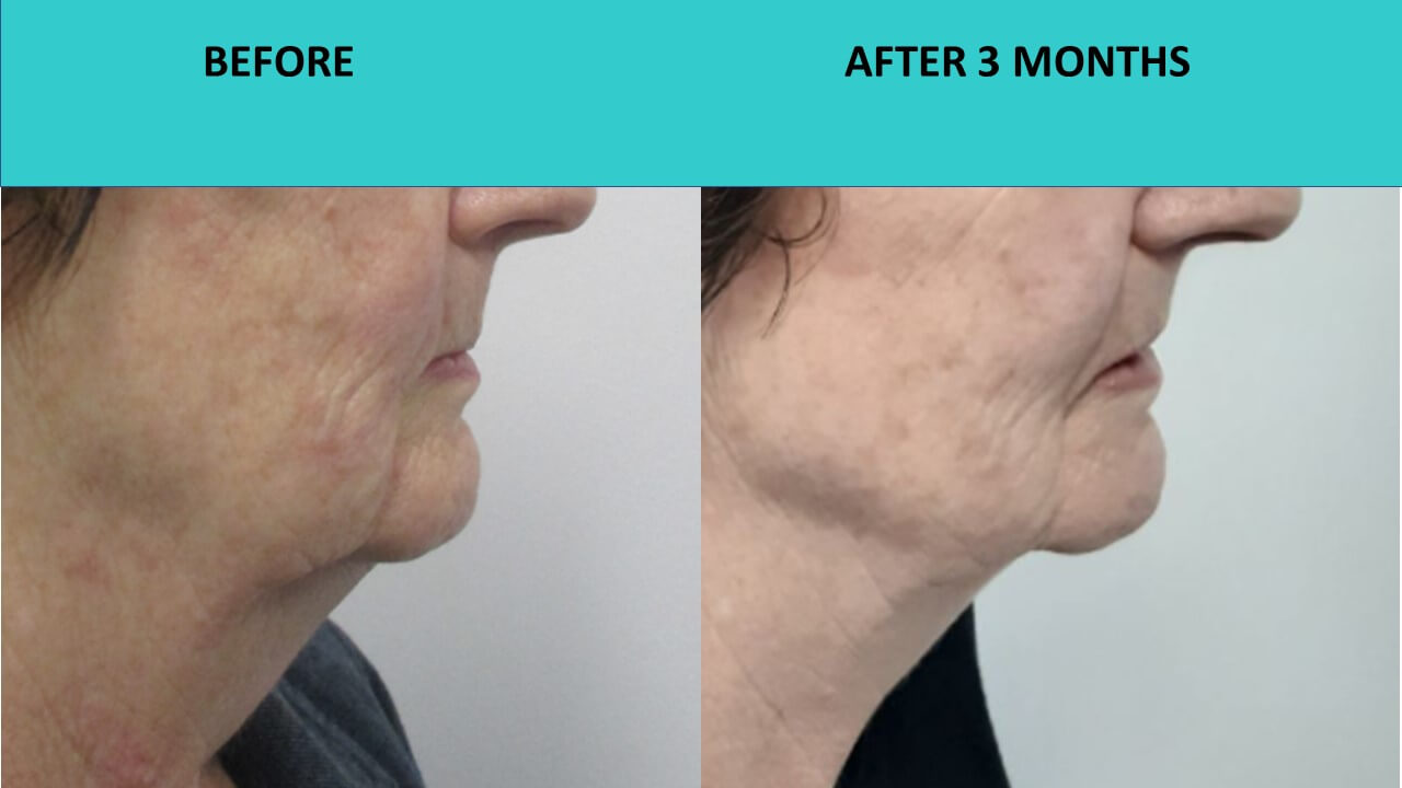 Great example of HIFU face contouring after three months. This customer has achieved a significant double chin reduction and improved jaw line definition without any needles or surgery.