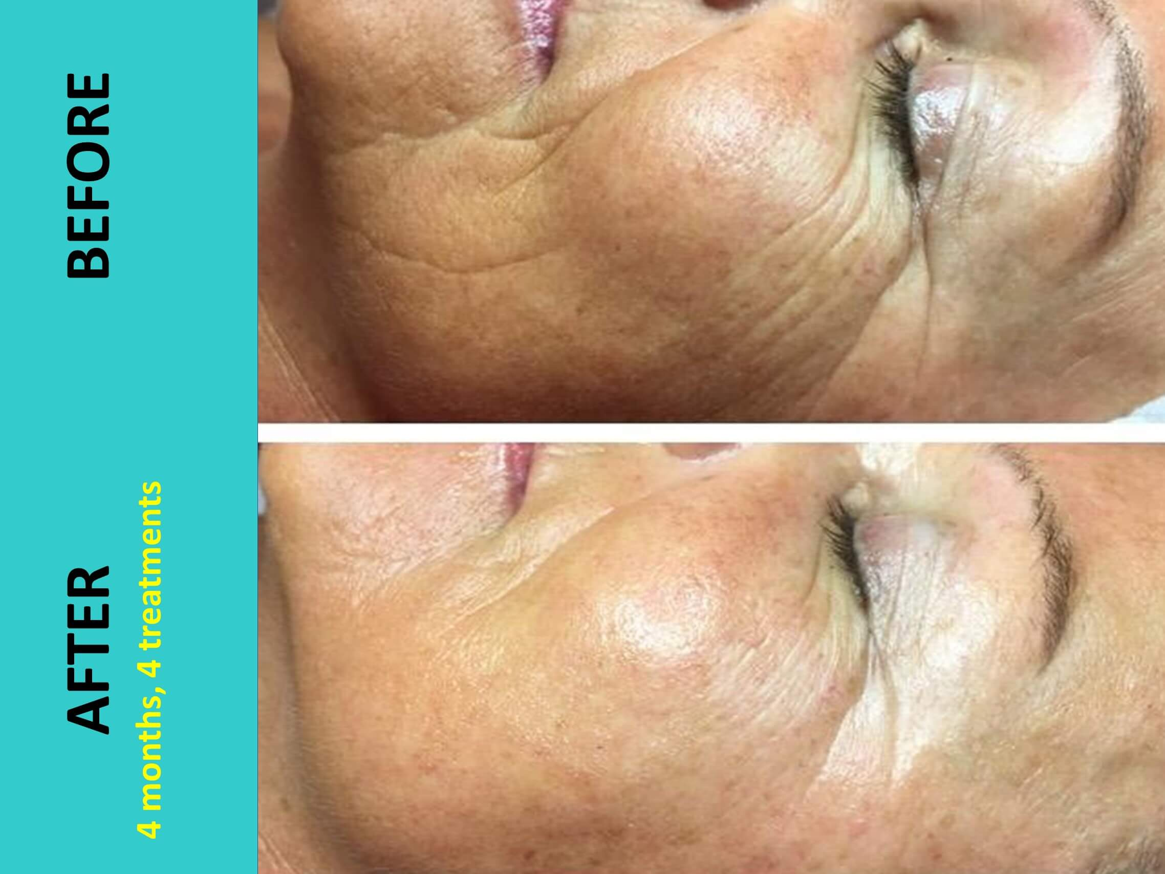 New Face after 4 treatments - simply incredible results!