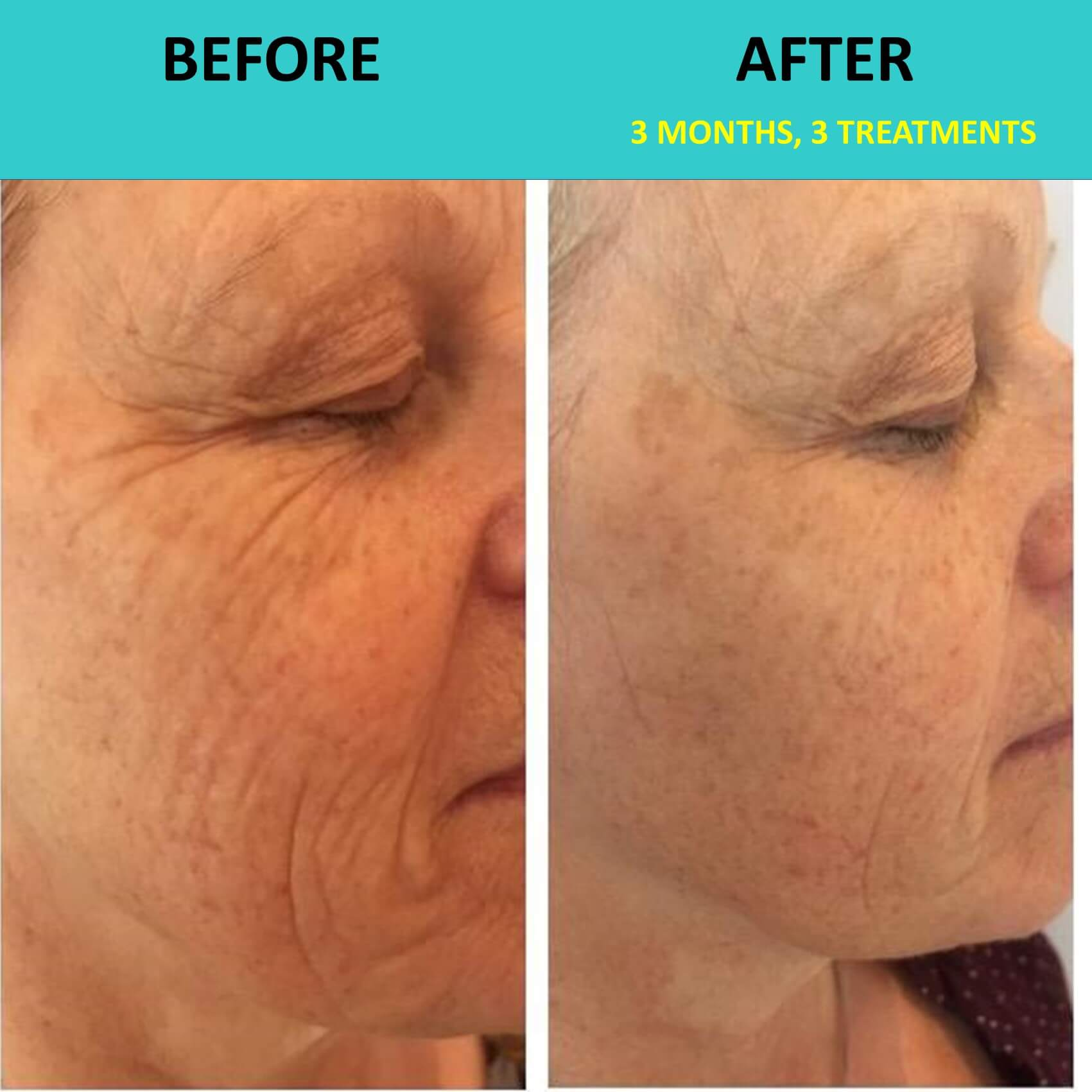 New Face after 3 treatments - incredible wrinkle removal in action!