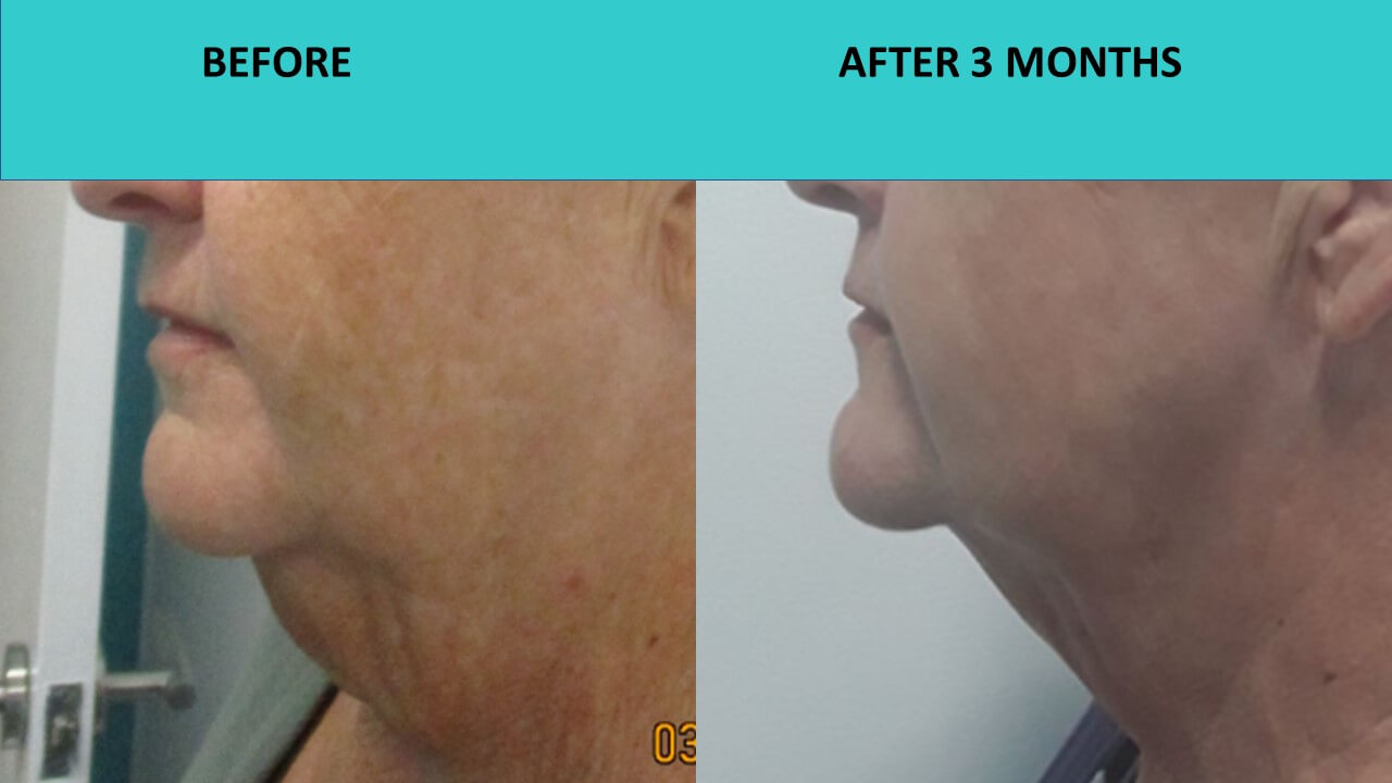 Another example of a double chin reduction at SABA Medispa.