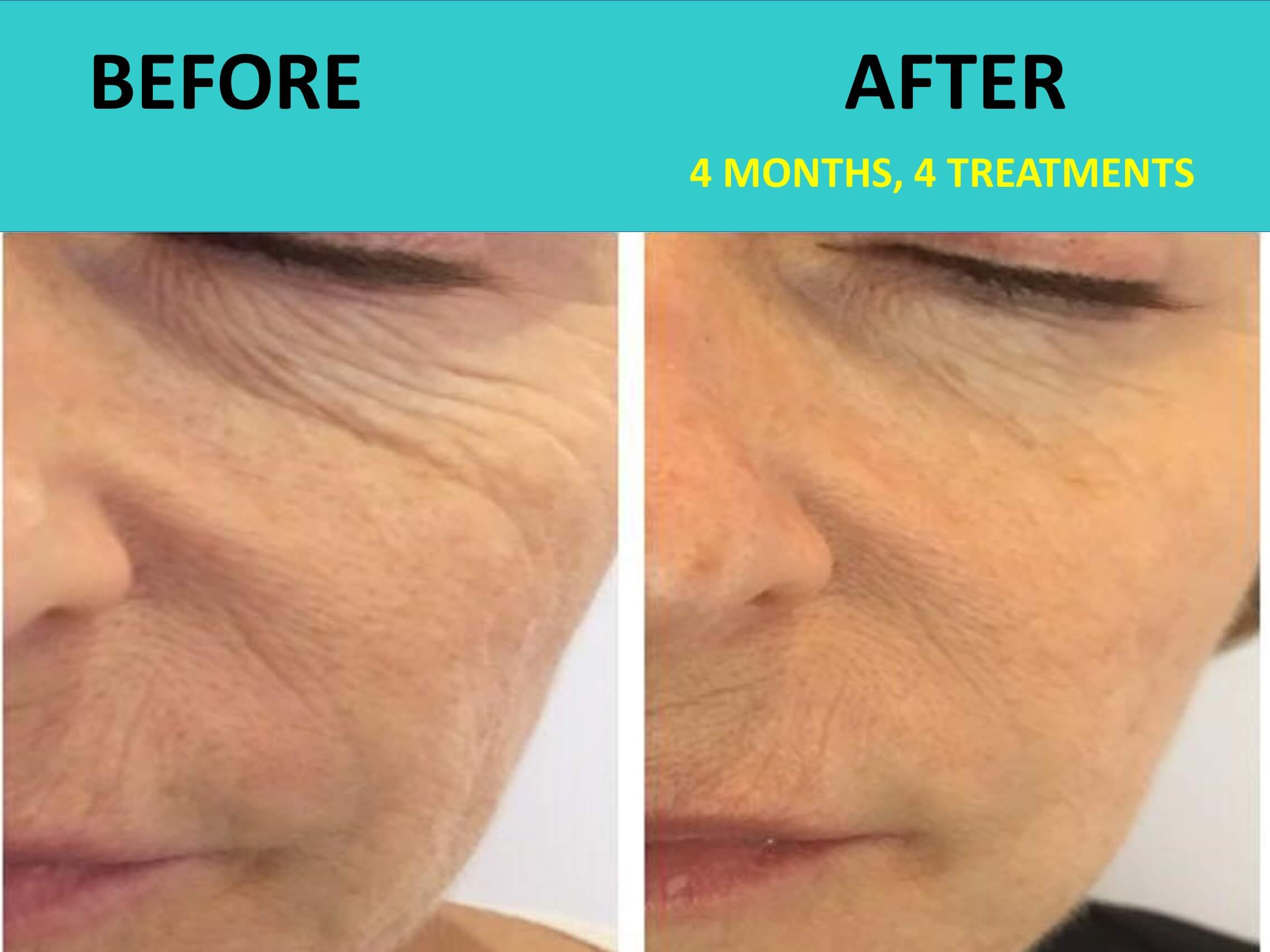 New Face after 4 treatments - incredible wrinkle removal in action!