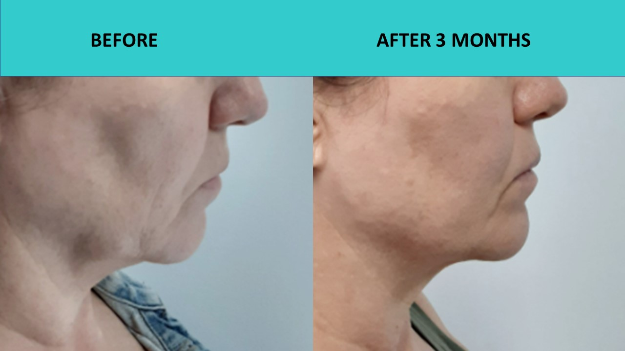 Great HIFU non surgical face lift results at SABA Medispa – jaw line definition improved