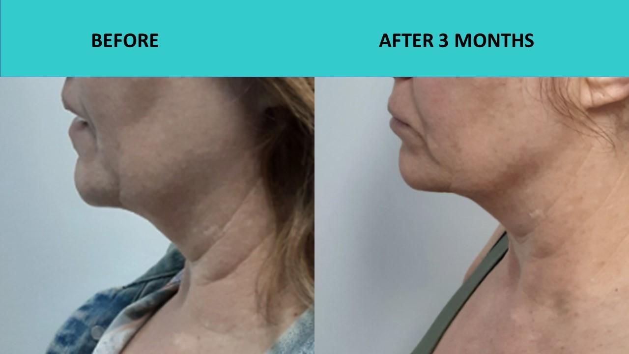 Great neck results at SABA Medispa – 4D HIFU