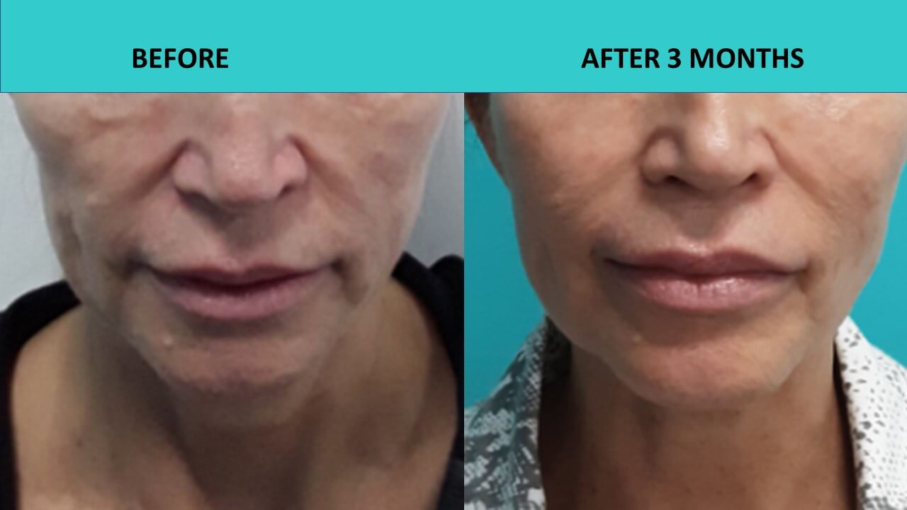 Incredible results from a HIFU non-surgical face and neck lift at SABA Medispa.
