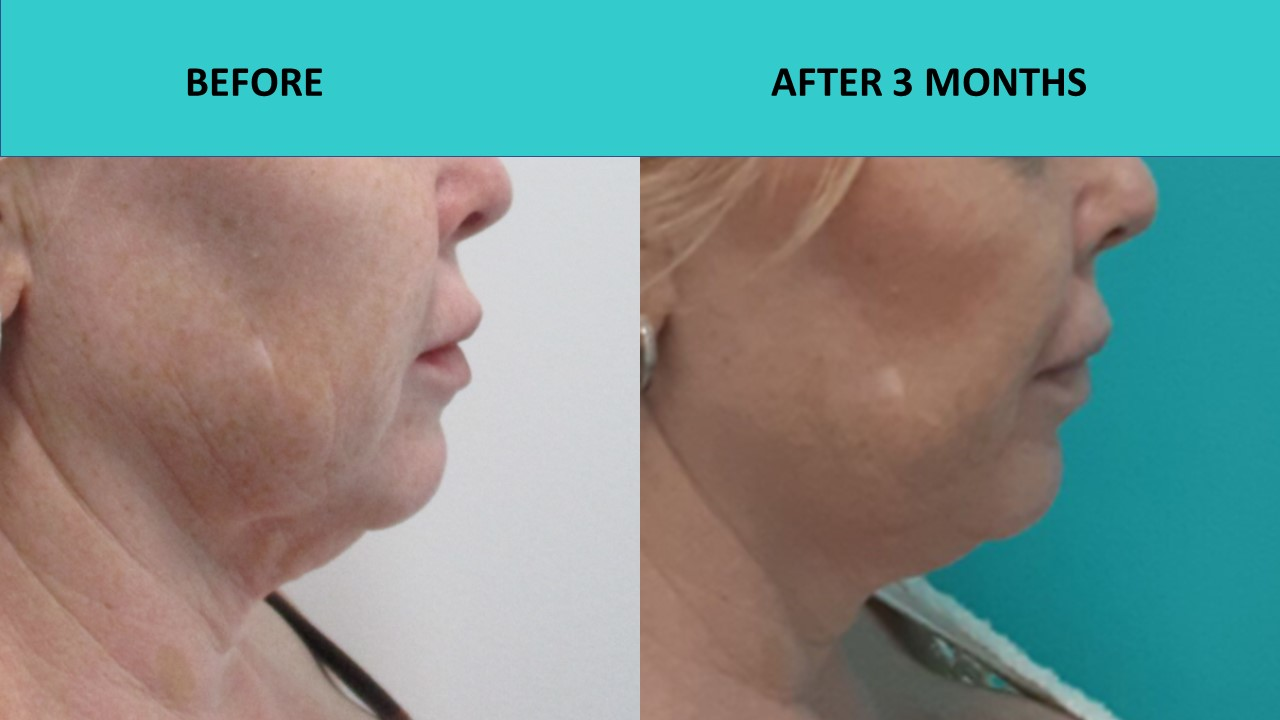 Amazing neck results and skin texture improvement – Nonsurgical face lift Brisbane