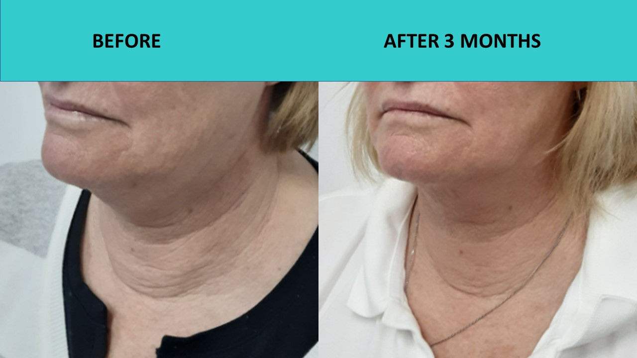 4D HIFU – another great neck result and skin texture improvement