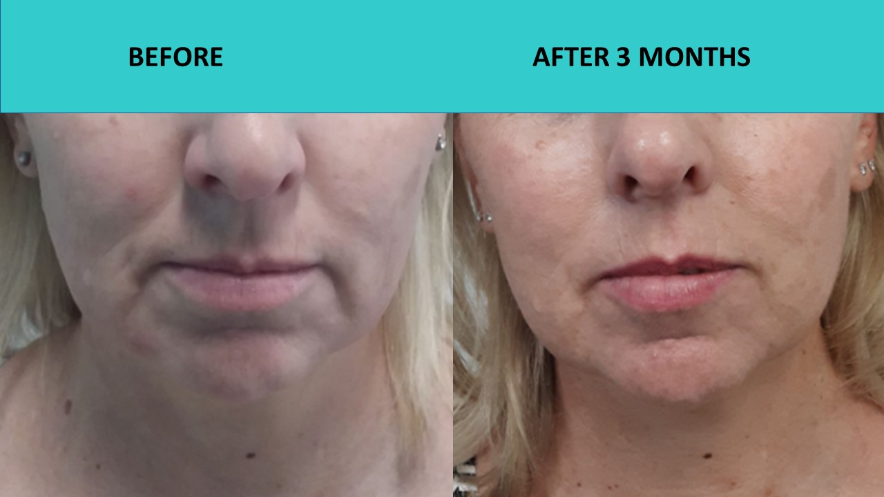 Another great result at SABA Medispa – naso-labial folds softened