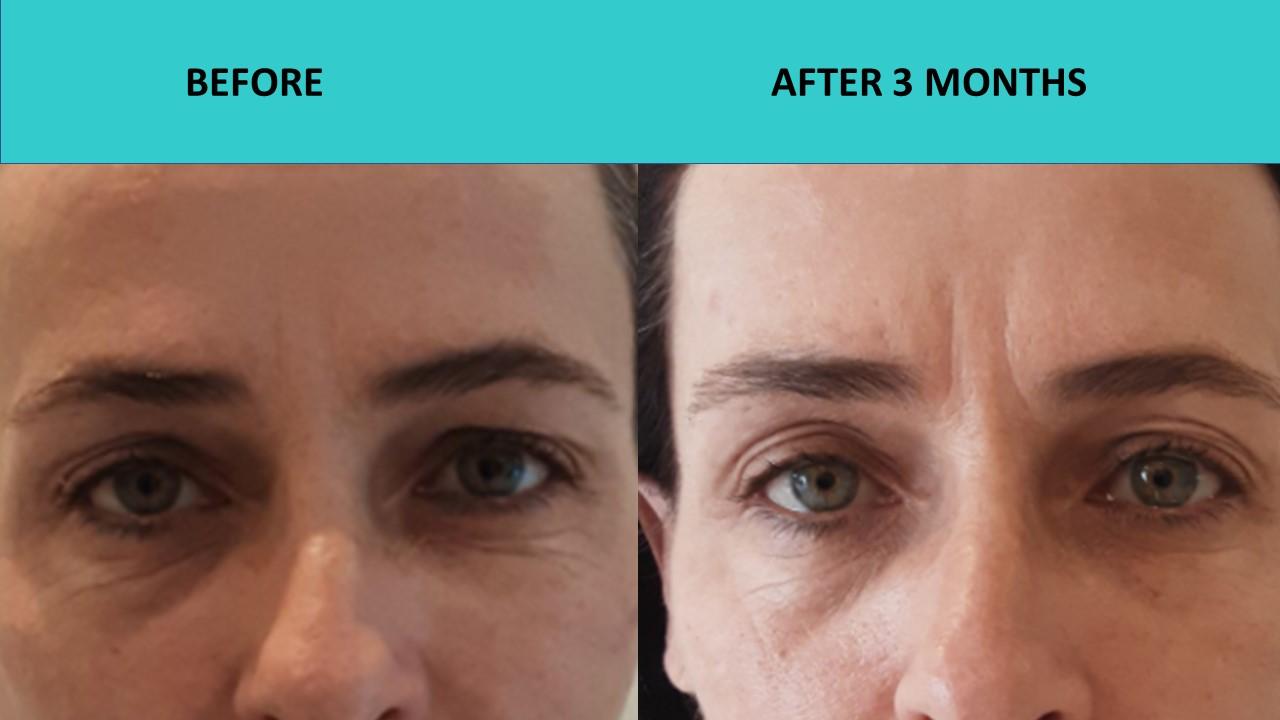 Under eye wrinkle removal with HIFU Mini at SABA Medispa