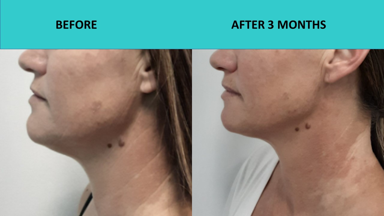 Great neck and jaw line results – Nonsurgical face lift Sydney