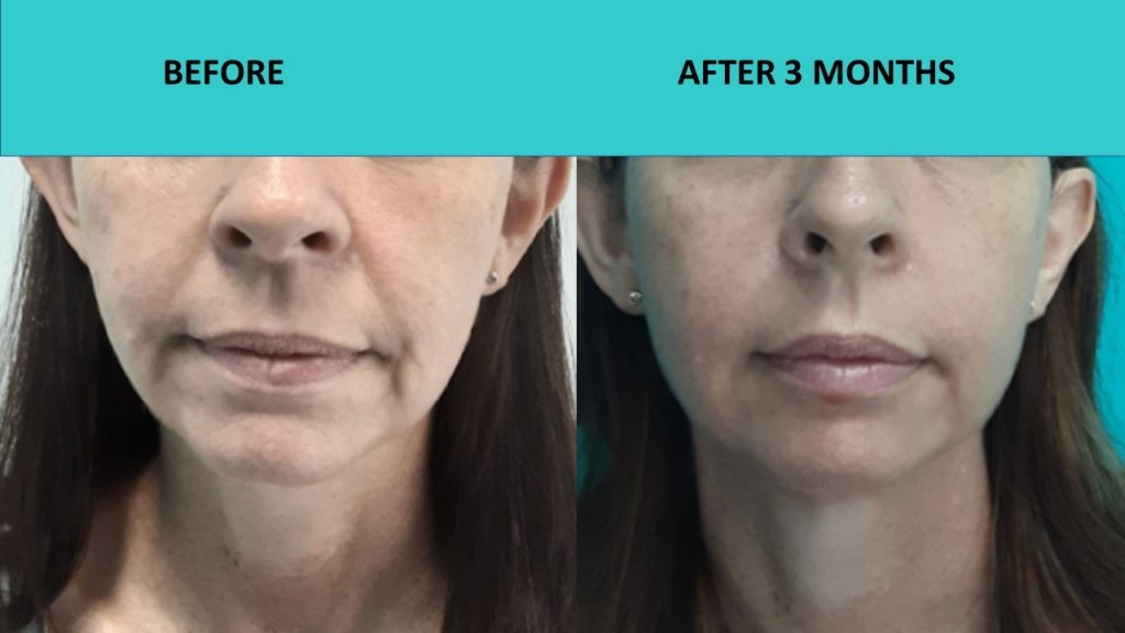 Great results for a younger customer – HIFU Sydney