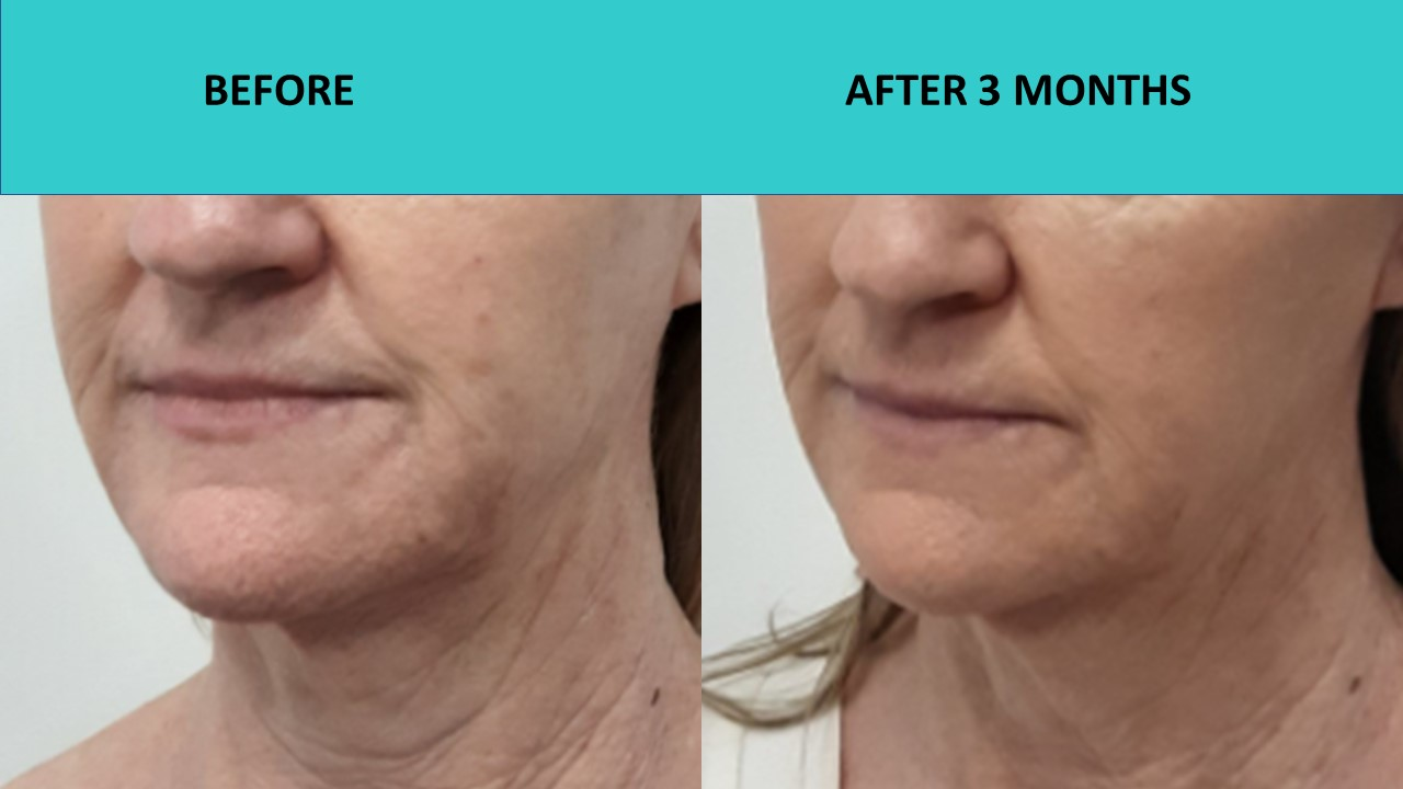 HIFU Brisbane – significant wrinkle reduction and skin texture improvement