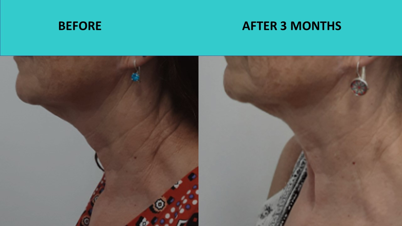 Another great neck result – HIFU Sydney