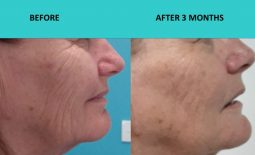4D HIFU Gold Coast – deep wrinkle removal