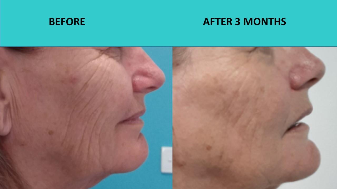 4D HIFU Gold Coast – deep wrinkle removal