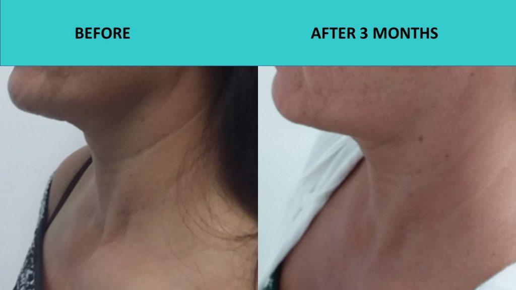 Great neck results – HIFU Gold Coast
