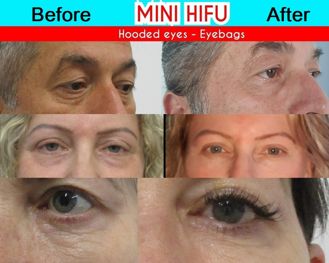 HIFU Mini is great for the eyes