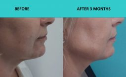 4 D HIFU Gold Coast – naso-labial folds and marionette lines softened