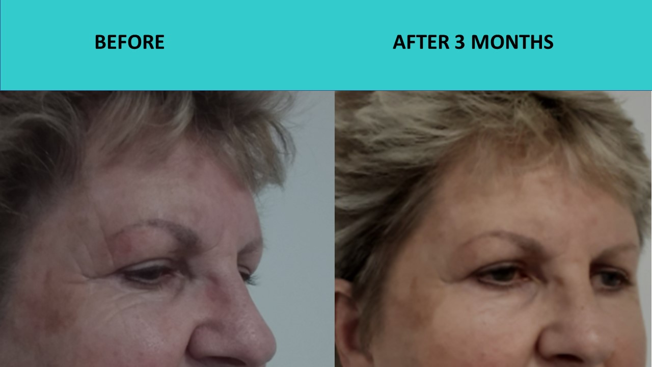 Great eye results from HIFU Mini and the New face treatments