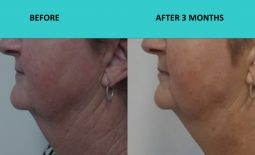 HIFU Brisbane – great neck result