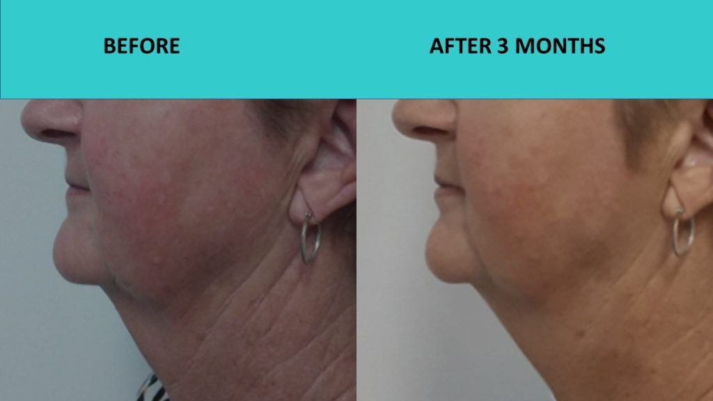 HIFU Brisbane – great neck result