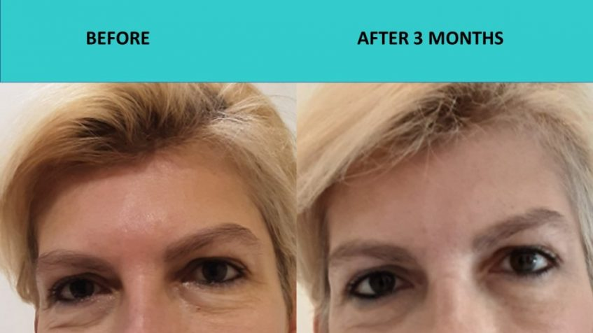 HIFU Mini Gold Coast – eye results after one treatment