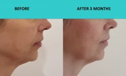 4D HIFU Sydney – naso-labial folds and marrionette lines softened