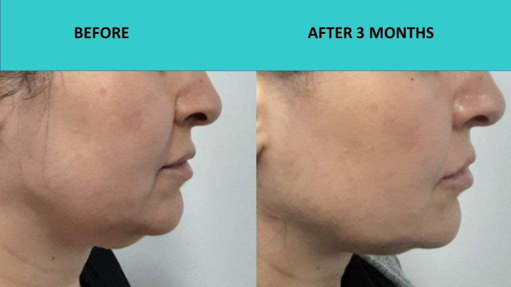 HIFU Gold Coast – double chin reduced jaw line definition improved