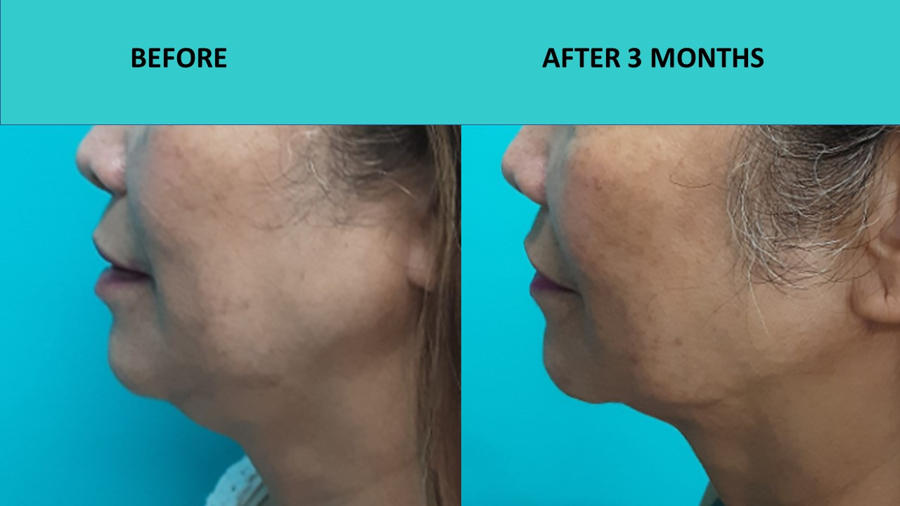 HIFU Sydney – double chin reduction