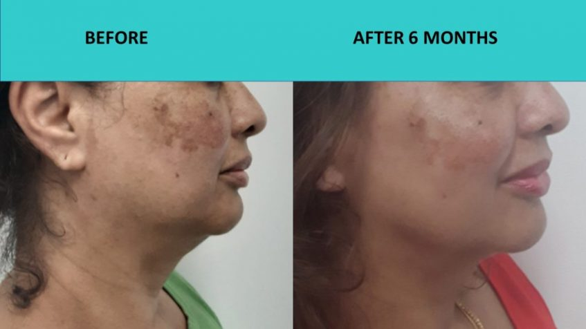 Great neck results and skin texture improvement