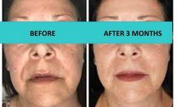 Skin texture improvement – 4D HIFU Brisbane