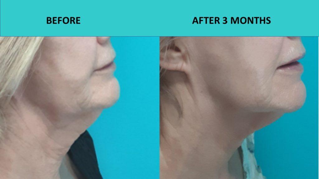 Great neck results, jowls lift and skin texture improvement – 4D HIFU at SABA Medispa