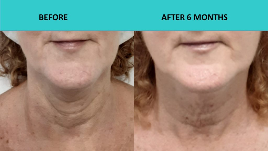 Great neck and skin texture improvement results at SABA Medispa