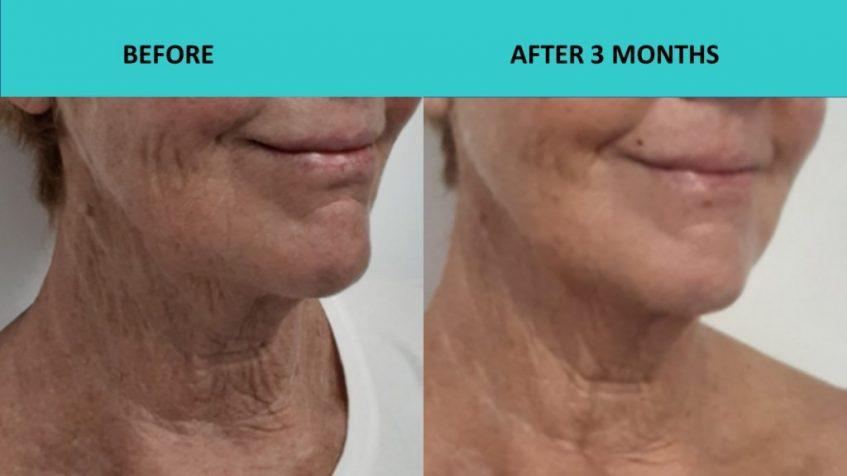 Fantastic neck results – 4D HIFU Sydney