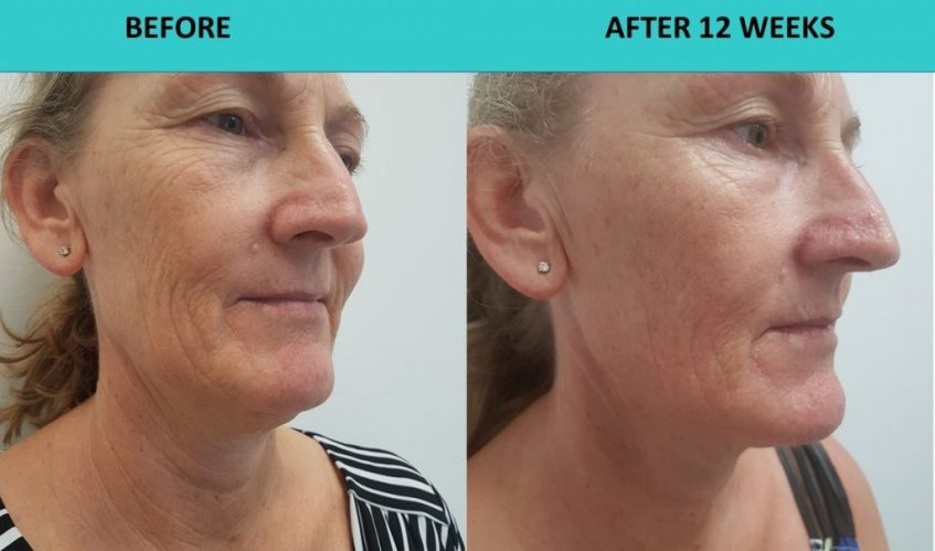 Wrinkles away – incredible 4D HIFU results