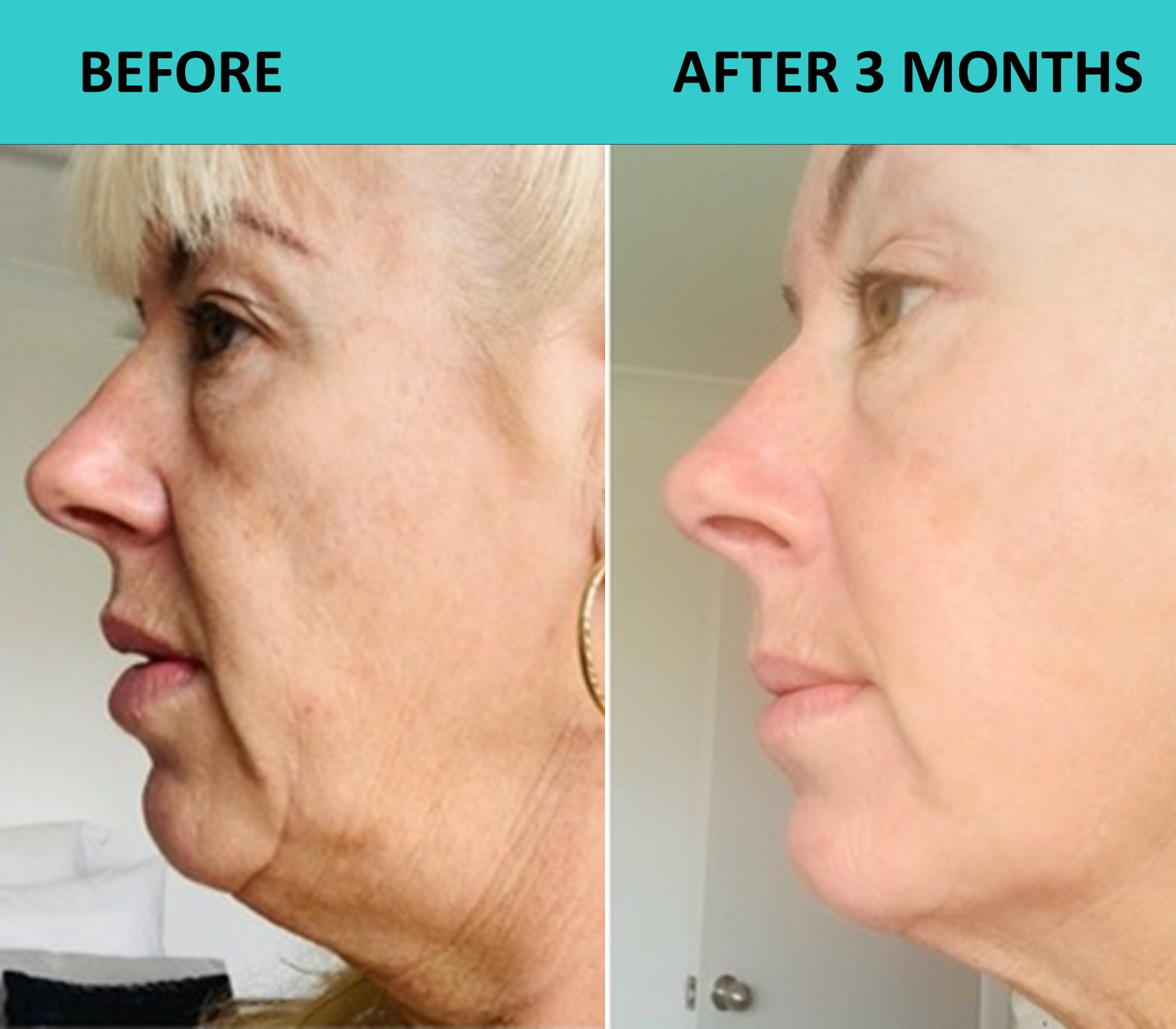 We received these incredible 4D HIFU transformation photos from the customer.