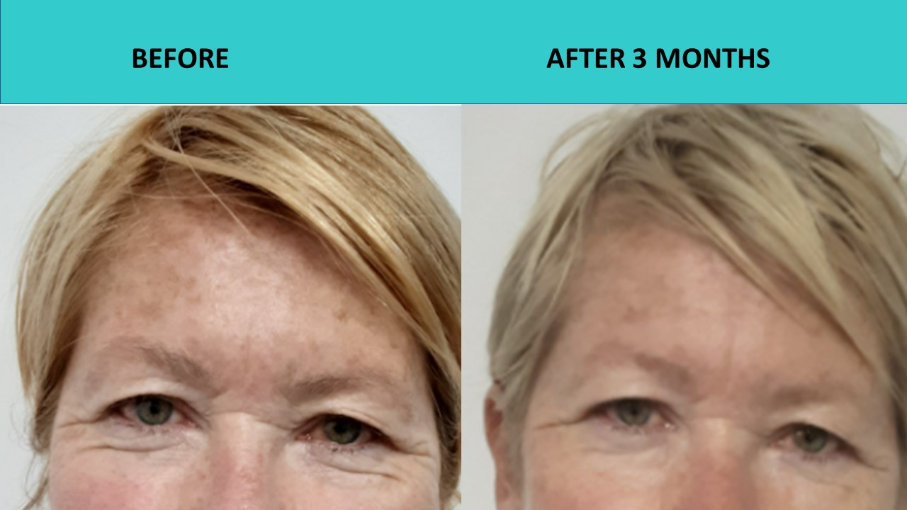 Awesome under eye results – 4D HIFU