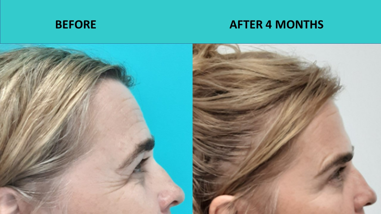 Fantastic eye results and forehead wrinkle removal