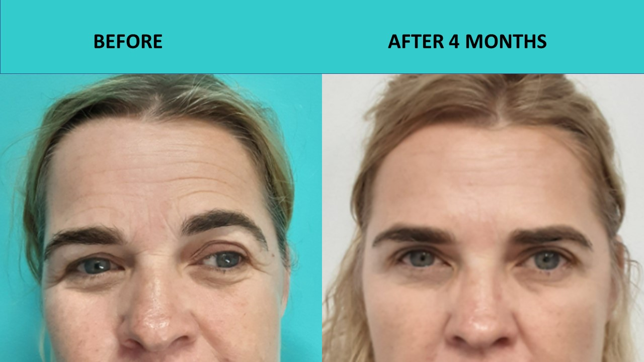 Great example of softening forehead lines after the 4D HIFU procedure at SABA Medispa.