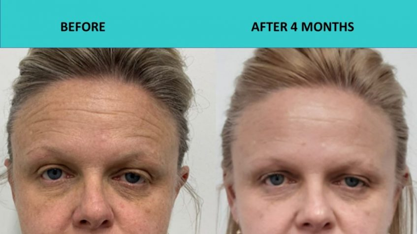 Incredible forehead wrinkle removal – HIFU Sydney