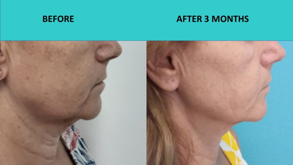 Fantastic jaw line lift and great neck results – 4D HIFU