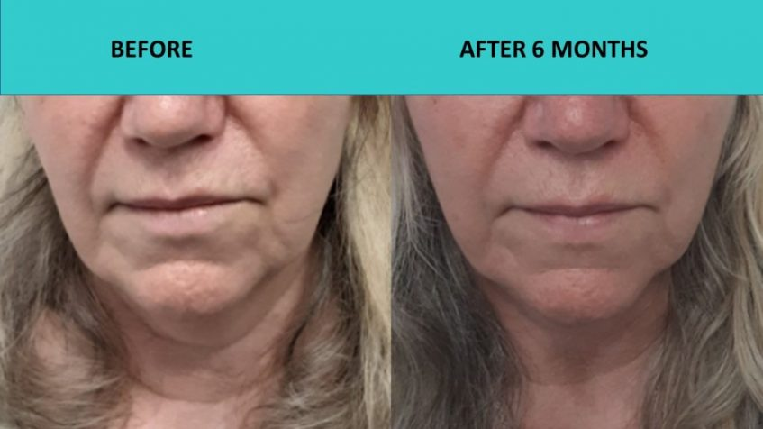 Great neck results after 6 months