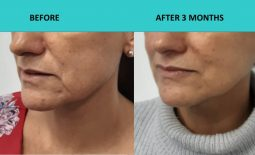 Good skin texture improvement – HIFU Gold Coast