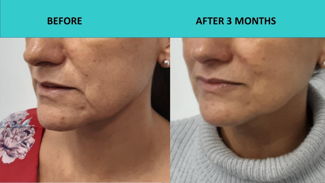 Good skin texture improvement – HIFU Gold Coast