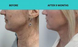 Fantastic neck results after 9 months – 4D HIFU Sydney