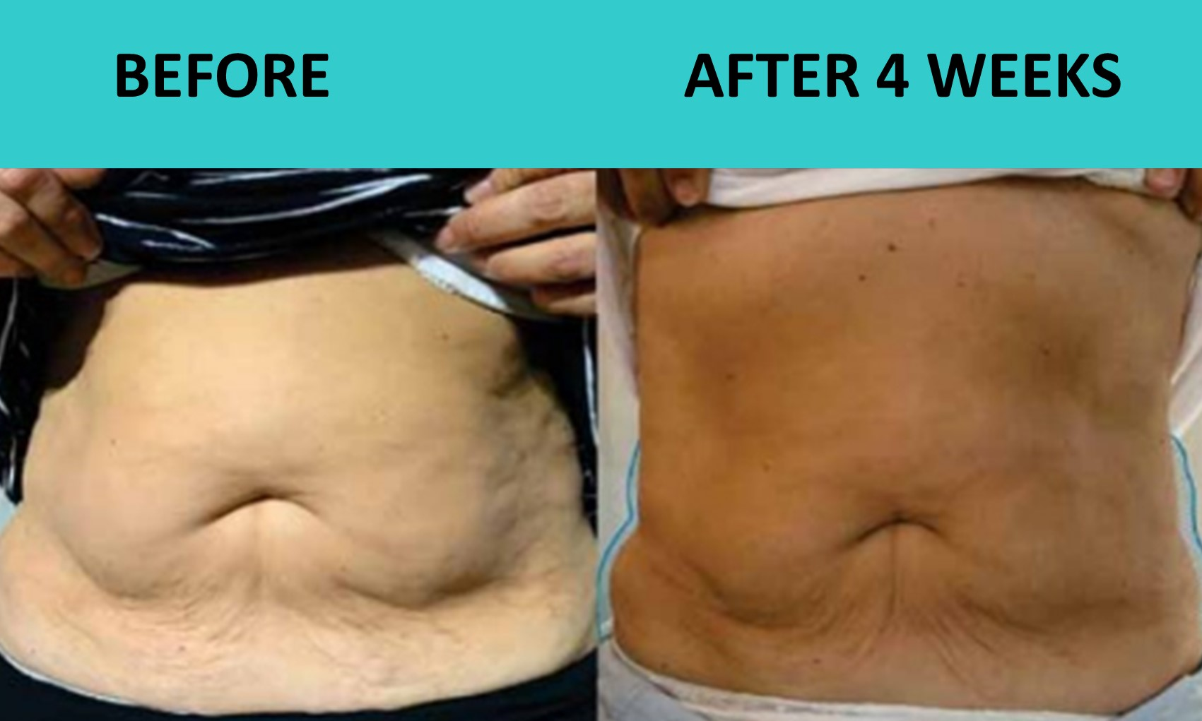 SABA Sculpt – incredible results at our Hope Island clinic